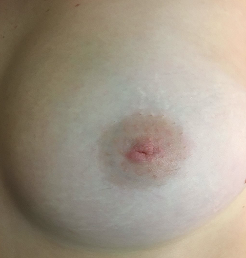 5 Things You Need to Know About Inverted Nipples